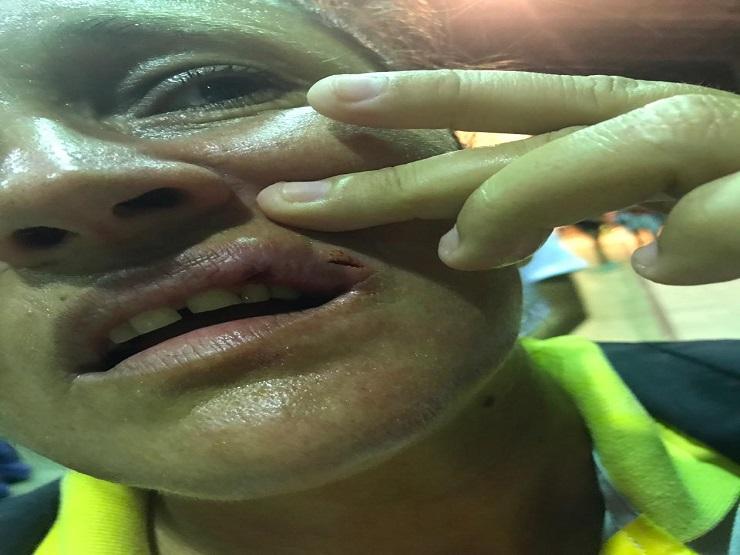 Juíza de futsal é agredida a socos durante campeonato em Parnaíba