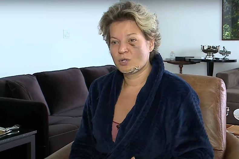 Joice Hasselmann apresenta 5 fraturas no rosto e diz não saber o que houve